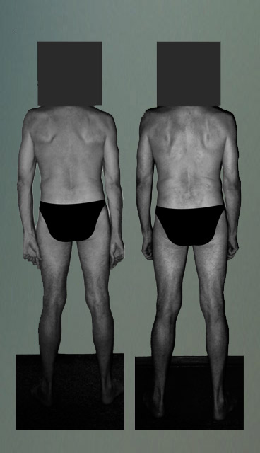 Photo: Postural Integration - Fixing a posture - shoulder blades and rotated arms falling into alignment.jpg