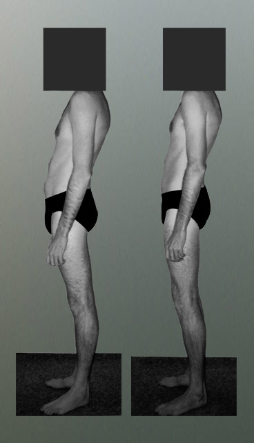 Photo: Postural Integration improved alignment in his Kyphosis.jpg